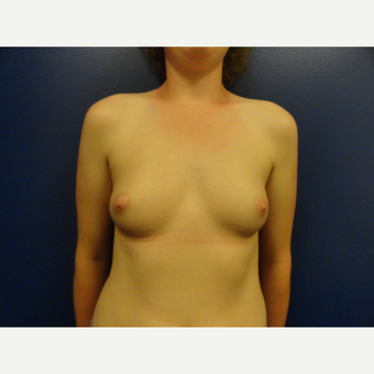 18-24 year old woman treated with Breast Implants before 3205573