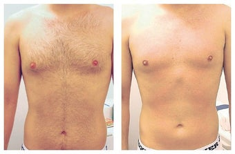 Laser Hair Removal of Male Chest and Abdomen