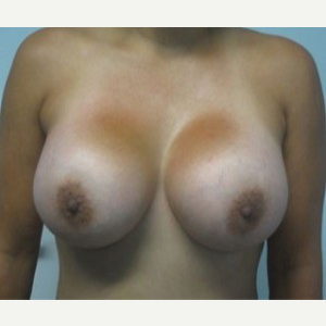 Breast Augmentation after 3054769