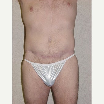 Male Tummy Tuck after 1744286