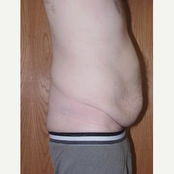 Male Tummy Tuck 1744286