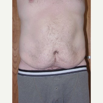 Male Tummy Tuck before 1744286