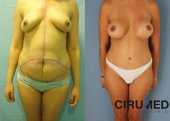 Supercharged Breast Augmentation  before 1285084