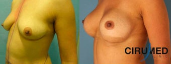Supercharged Breast Augmentation  1285084