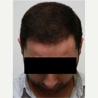 35-44 year old man treated with Organic Hair Transplant after 3172532