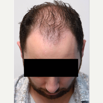 35-44 year old man treated with Organic Hair Transplant before 3172532