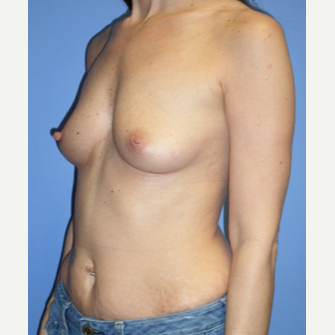 35-44 year old woman treated with Breast Implants before 3370240