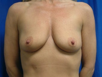 Breast Augmentation with Gummy Bear Implants before 1459175