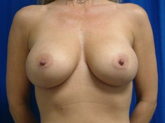Breast Augmentation with Gummy Bear Implants after 1459175