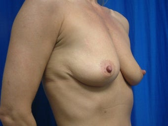 Breast Augmentation with Gummy Bear Implants 1459175