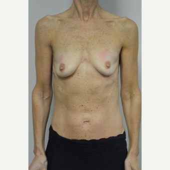 55-64 year old woman treated with Breast Implants before 3055543