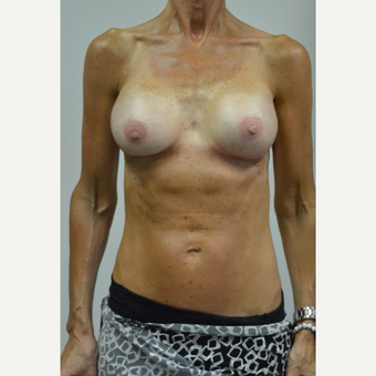 55-64 year old woman treated with Breast Implants after 3055543