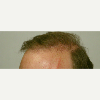 Hair Transplant after 3241408