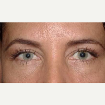55-64 year old woman treated with Eyelid Surgery after 3170591