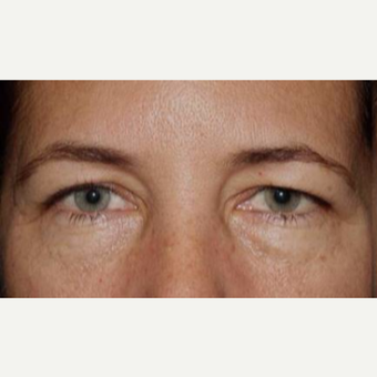 55-64 year old woman treated with Eyelid Surgery before 3170591