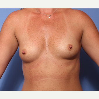 35-44 year old woman treated with Breast Augmentation before 3782931