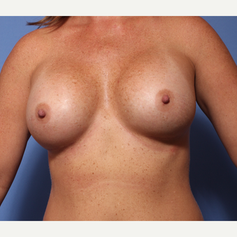 35-44 year old woman treated with Breast Augmentation after 3782931