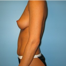 Breast Augmentation before 3665685