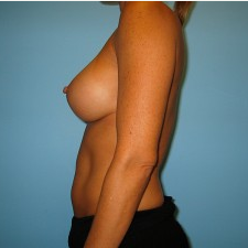 Breast Augmentation after 3665685