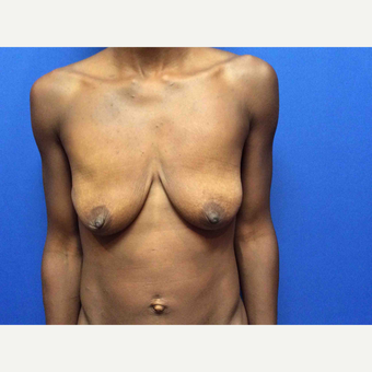 45-54 year old woman treated with Breast Augmentation before 3019032