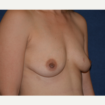 25-34 year old woman treated with Breast Augmentation before 3454933