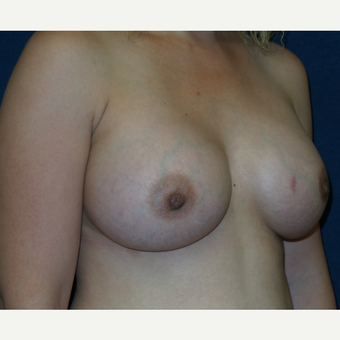 25-34 year old woman treated with Breast Augmentation after 3454933
