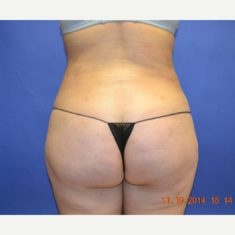 25-34 year old woman treated with Brazilian Butt Lift after 3299065