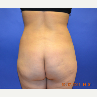 25-34 year old woman treated with Brazilian Butt Lift before 3299065
