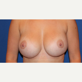 25-34 year old woman treated with Breast Augmentation after 3289077