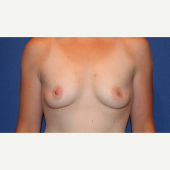25-34 year old woman treated with Breast Augmentation before 3289077