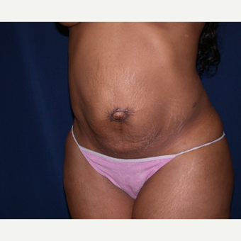 35-44 year old woman treated with Tummy Tuck before 3565397