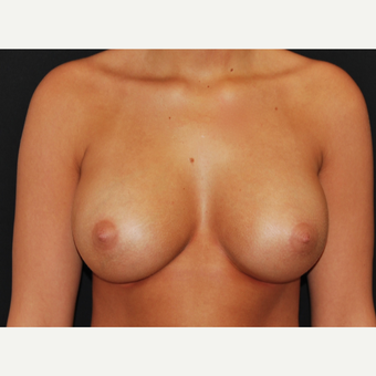 18-24 year old woman treated with Breast Implants after 3650795