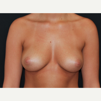 18-24 year old woman treated with Breast Implants before 3650795