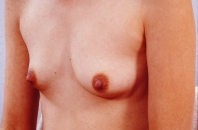 Breast Augmentation before 3446170