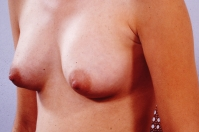 Breast Augmentation after 3446170