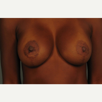 35-44 year old woman treated with Breast Augmentation after 3493283