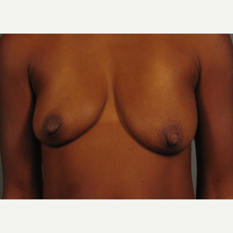 35-44 year old woman treated with Breast Augmentation before 3493283