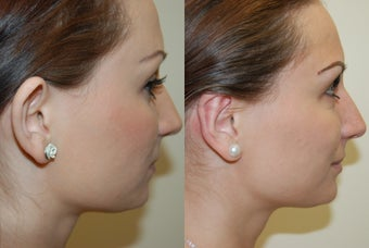 Otoplasty Surgery before 1075798