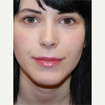 25-34 year old woman treated with Silikon 1000 for lip augmentation. Two treatments.
