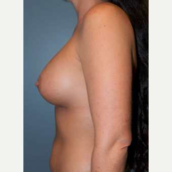35-44 year old woman treated with Breast Augmentation after 3712186