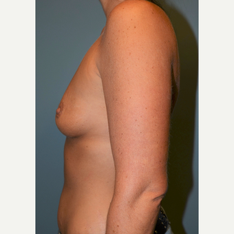 35-44 year old woman treated with Breast Augmentation before 3712186