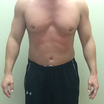 35-44 year old man treated with Laser Liposuction after 3530181