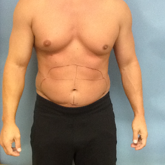 35-44 year old man treated with Laser Liposuction before 3530181