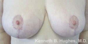 Breast Lift after 3055010