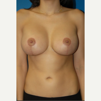 Breast Lift with Implants after 1724442