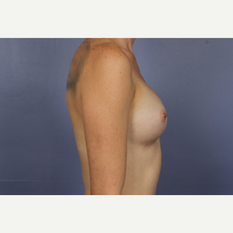 Breast Augmentation after 3663780