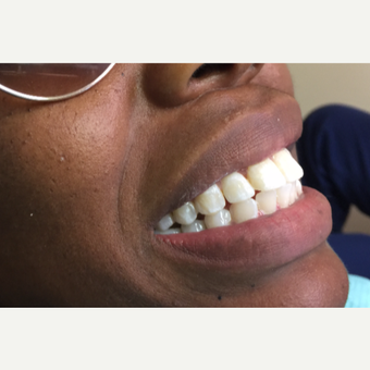 25-34 year old woman treated with Dental Bonding for whiter teeth after 3271564