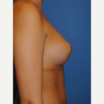25 year old woman treated with Breast Augmentation, A to full C cup, 350 cc MPP before 3623535