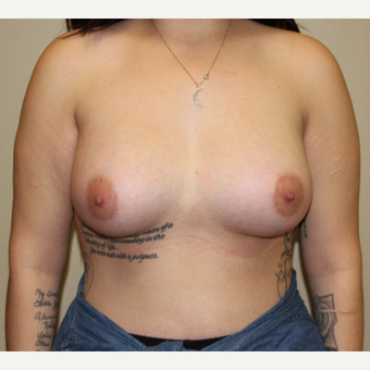 18-24 year old female with breast augmentation after 3215246
