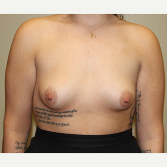 18-24 year old female with breast augmentation before 3215246